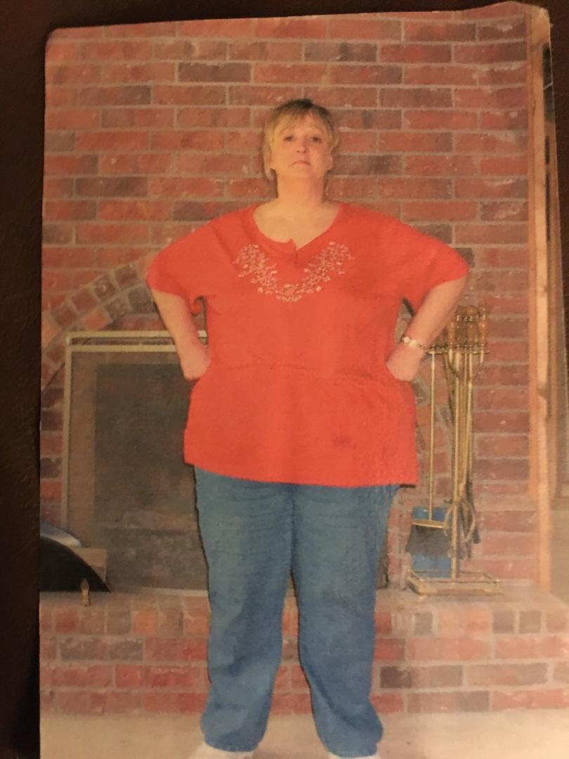 my mom obese